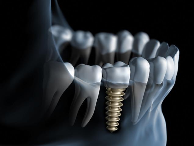 Implante Dentario, historia, origem