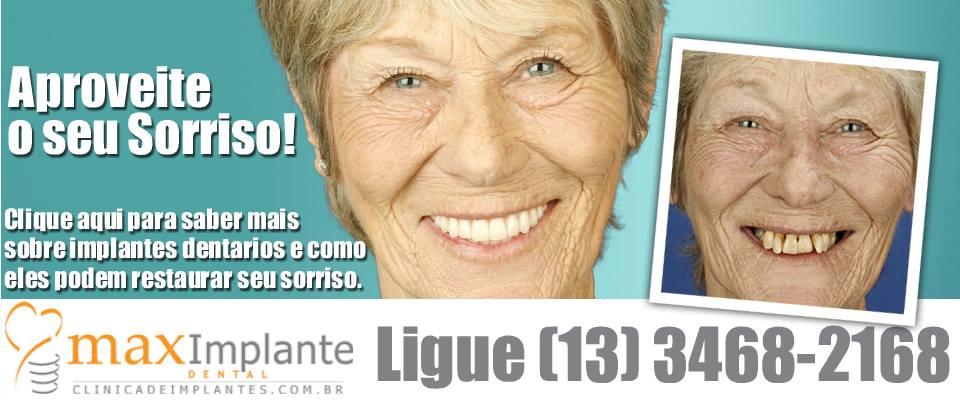 Implantes Dentários em Sao Vicente