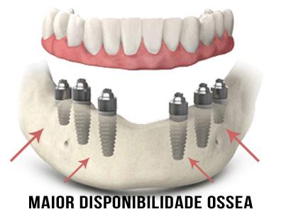 Implante Dentarios- Clinica em Santos