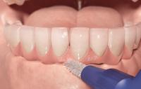 implante limpeza