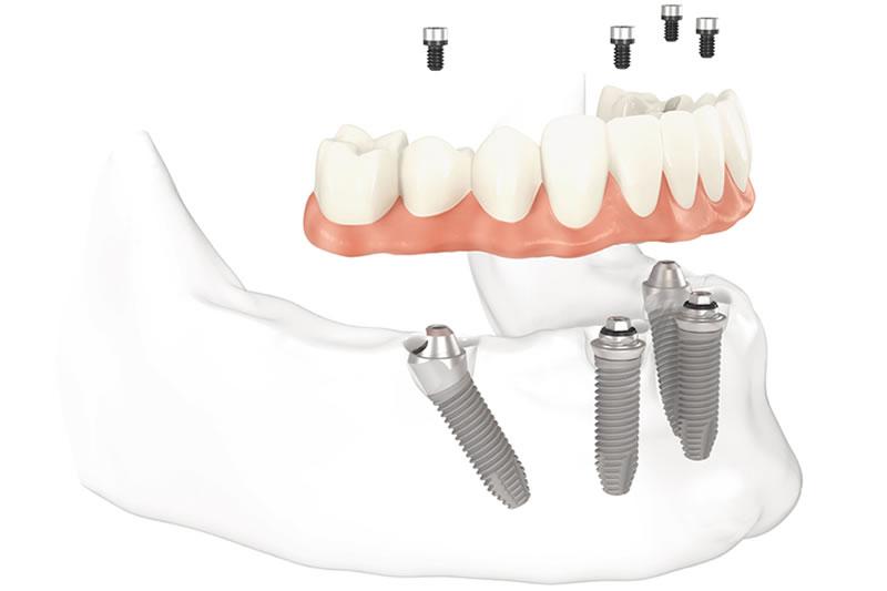 tudo em quatro implantes dentarios