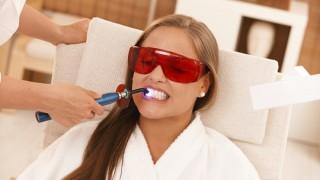 custo-do-clareamento-dental-laser-320x180 (1)