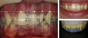 Esthetic Teeth 3D  Smile Analysis -1