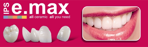emax-lente-de-contato-dental