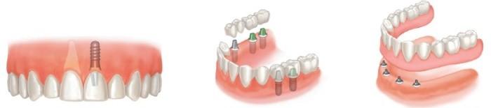 tipos de implante dentario