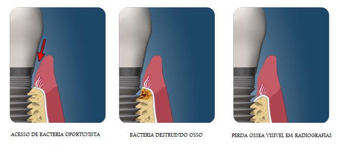 Cuidados com Implante Periimplantite