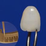 Lentes de Contaro Dental