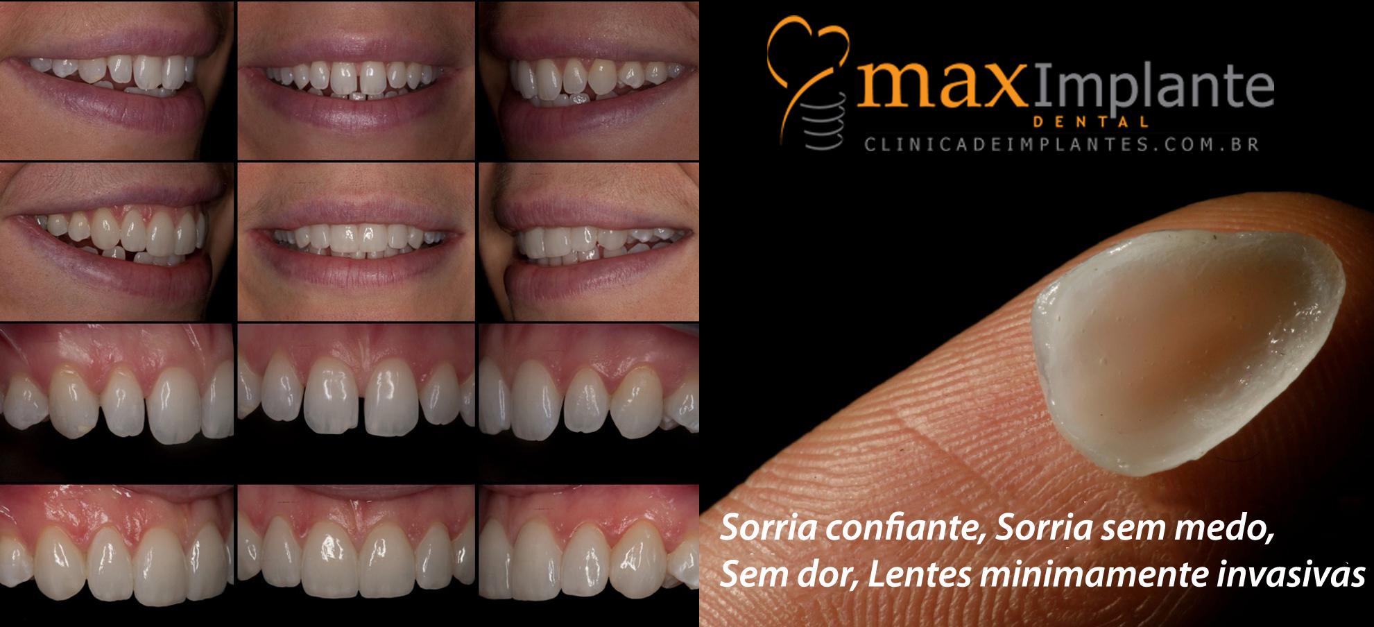 emax_lentes_contato