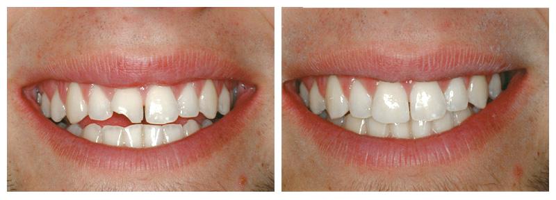 Dente Quebrado Emergencia Dentista 24 horas